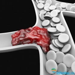 Симптомы тромба: как не пропустить, на что обратить внимание