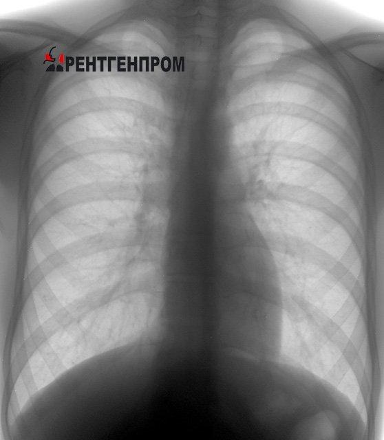 Какие болезни выявляет флюорография