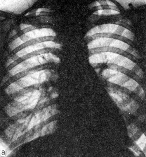 Карнификация легкого: симптомы, диагностика и лечение