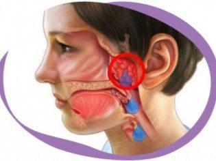 Гипертрофия миндалин у детей и взрослых: нужно ли лечить?