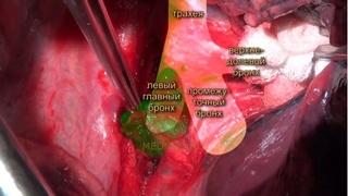 Гамартома легкого: причины, терапевтическое лечение и операция