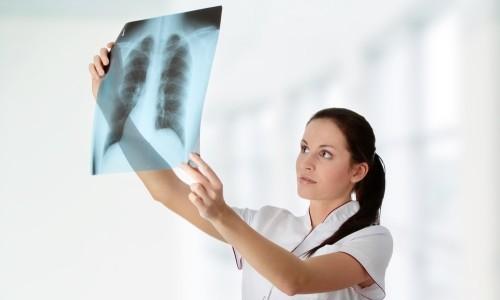 Что нужно знать о туберкулёзе, чтобы не заразиться?