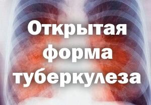 Вся опасность открытого туберкулеза легких - симптомы и лечение