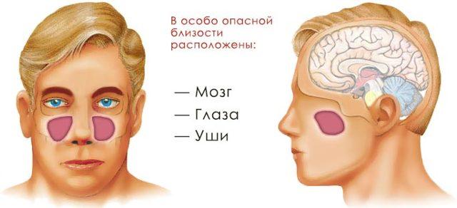 Гайморит: основные симптомы осложнений заболевания