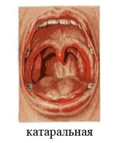 Катаральная ангина у взрослых и детей: симптомы и лечение