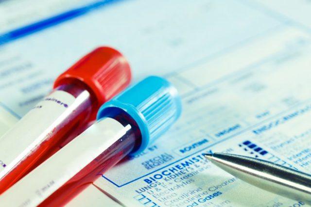 Анализ крови при бронхите: показатели и расшифровка