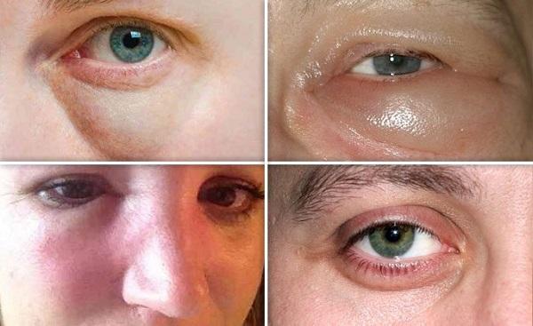 Отек при гайморите (глаз, лица, носа): как его снять?