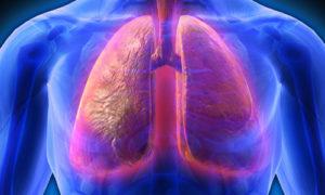 Стафилококковая пневмония: симптоматика, диагностика, лечение