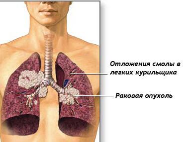 Рак легких на ранней стадии: первые симптомы, диагностика, прогноз