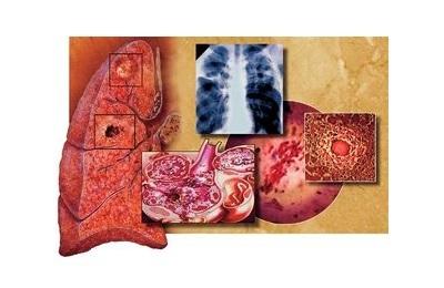 Туберкулёз и витамины: какие витамины употреблять при туберкулезе