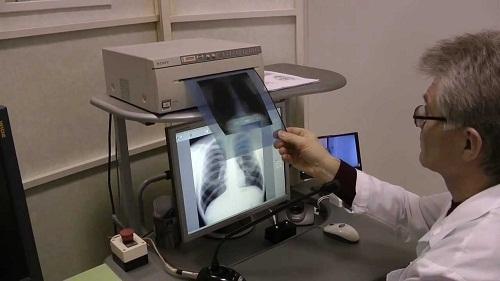 Почему важно регулярно проходить флюрографию: основные причины