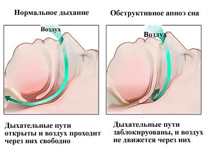 Операция от храпа: особенности лечения, противопоказания