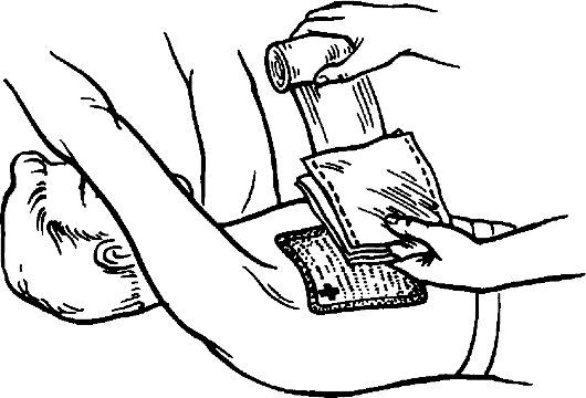 Повязка при пневмотораксе: материалы, техника наложения