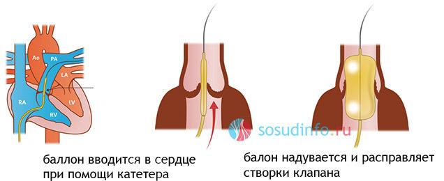 Стеноз легочной артерии: этиология, виды, диагностика, лечение