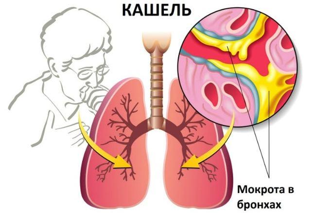 Самые частые ошибки при лечении пневмонии