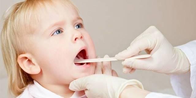 Белый налет в горле у ребенка, взрослого: лечение
