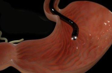 Как дышать при ФГДС желудка: правила и техника дыхания