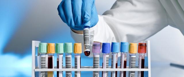 Какие анализы при тонзиллите нужно сдавать и почему?