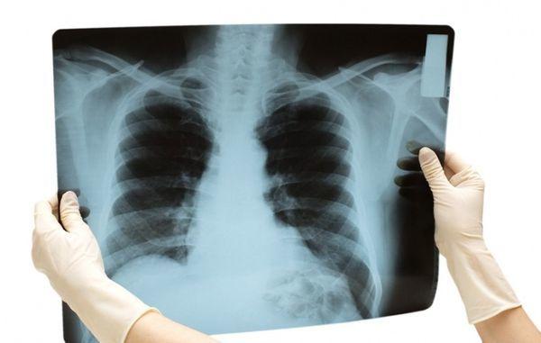 Как вылечить желудочный кашель: симптомы и причины