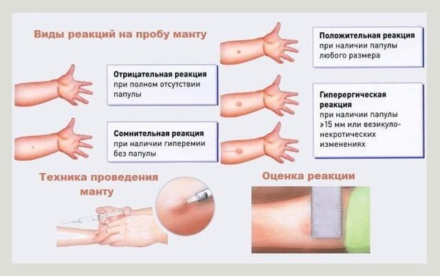Туберкулезный менингит: симптомы, последствия, лечение