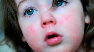 Горло при скарлатине у детей и взрослых: как выглядит, чем лечить