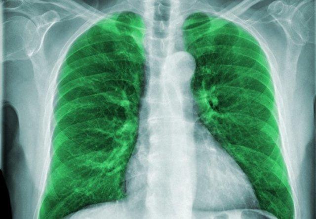 Левосторонняя пневмония у детей: симптомы и лечение