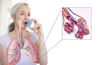 Пофессиональная бронхиальная астма: трудности экспертизы и особенности лечения