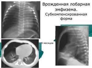 Лобарная эмфизема у новорожденных и детей: насколько опасно заболевание