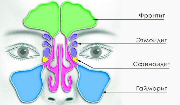 Народные средства от синусита: особенности лечения