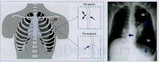 Клапанный пневмоторакс: признаки, первая помощь, лечение