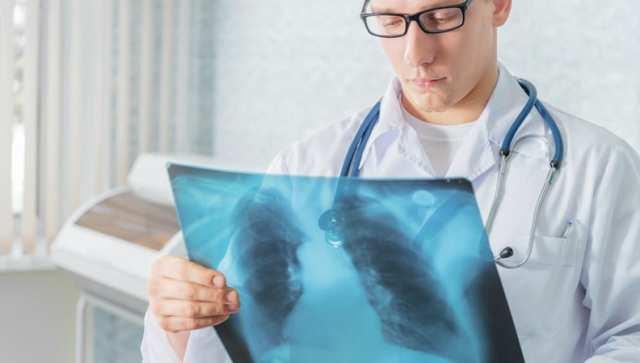 Крупозное воспаление легких: причины и лечение