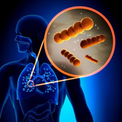 Инкубационный период пневмонии: длительность и факторы
