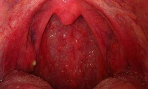 Ларингит и фарингит у детей и взрослых: чем отличаются, лечение
