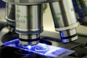 Альвеолит легких: виды, симптомы, лечение и прогноз