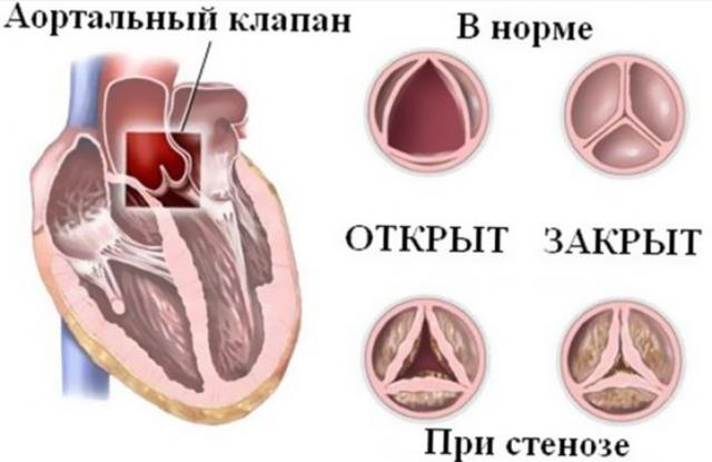 Боль в сердце при дыхании: причины, особенности