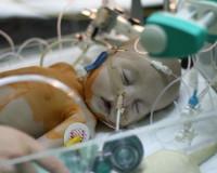 Бронхолегочная дисплазия у детей: этиология, симптоматика, лечение