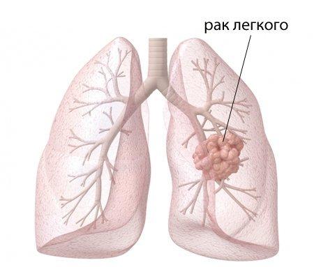 Плевральный выпот: причины, симптомы, диагностика, лечение