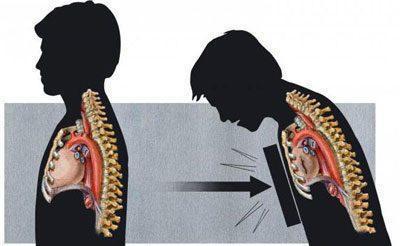 Ушиб легкого у взрослых и детей: симптомы, лечение и последствия