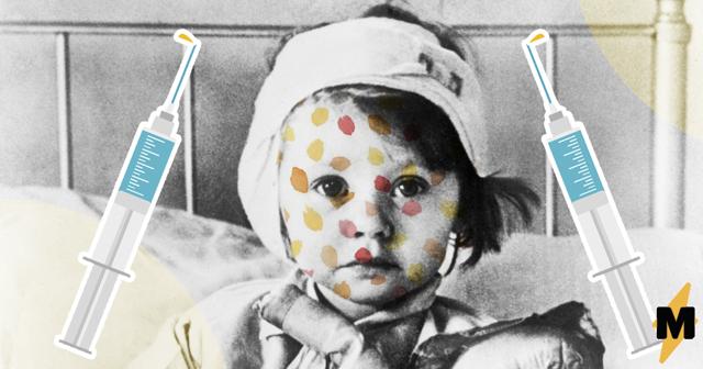 Эпидемия кори или почему прививка является необходимой?