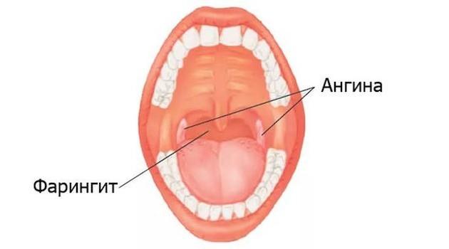 Почему может болеть горло после занятий вокалом: причины