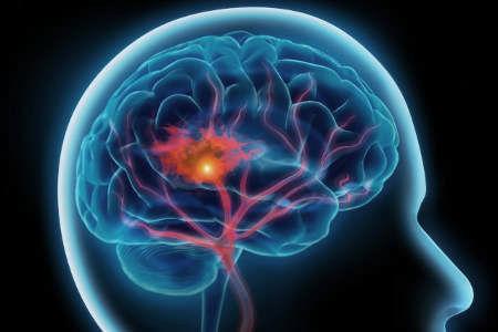 Дисфагия: причины, разновидности, диагностика, лечение