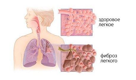 Фиброз легких: что это такое и как лечить?