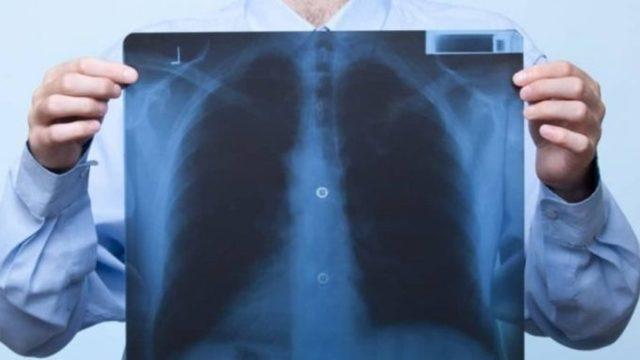 Как принимать настойку восковой моли при туберкулезе