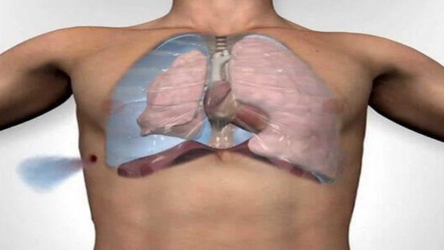 Спонтанный пневмоторакс: причины, симптомы, диагностика, лечение