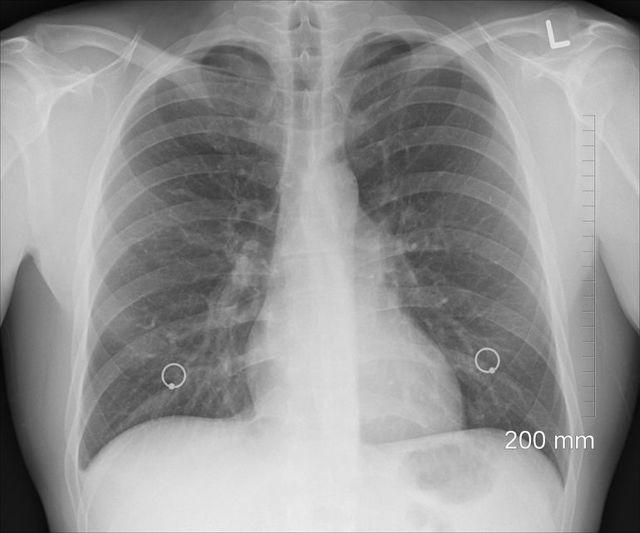 Черемуха от туберкулеза: особенности, как принимать