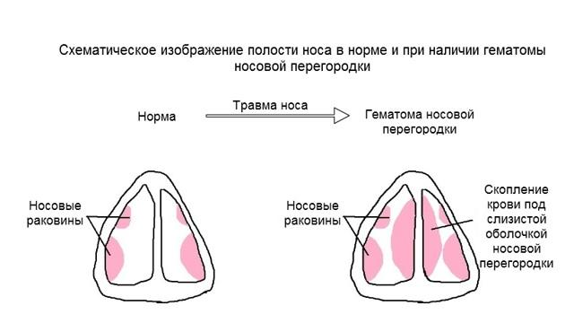 Гематома носовой перегородки: главные симптомы, особенности лечения