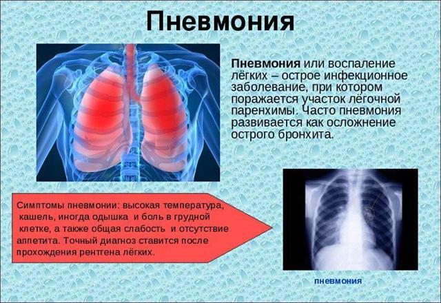 Дыхательная гимнастика после пневмонии: комплекс упражнений