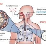 Туберкулез или рак: основные отличия и особенности