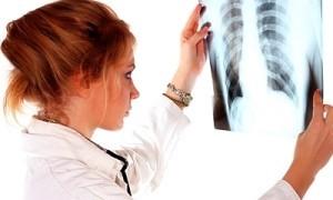 Химиотерапия при раке легких: все, что нужно знать