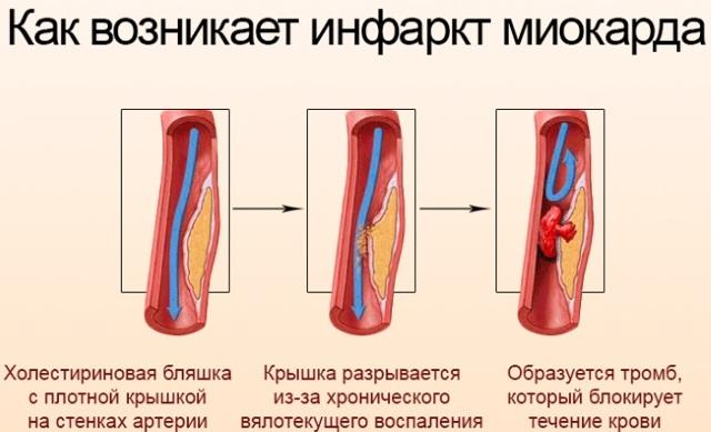 Процедура «горный воздух»: особенности проведения